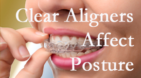 Clear aligners influence posture which Groton chiropractic helps.
