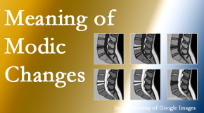 Hutter Chiropractic Office sees many back pain and neck pain patients who bring their MRIs with them to the office. Modic changes are often noted.