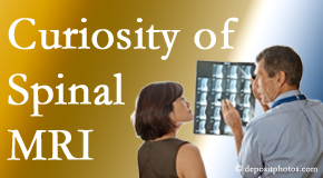 Groton MRIs for spinal stenosis may be revealing…or confusing.