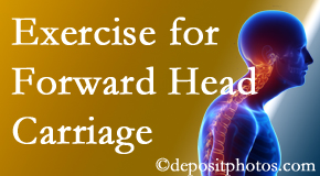 Groton chiropractic treatment of forward head carriage is two-fold: manipulation and exercise.