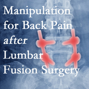 Groton chiropractic spinal manipulation helps post-surgical continued back pain patients discover relief of their pain despite fusion.