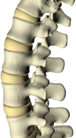 low back pain spine picture