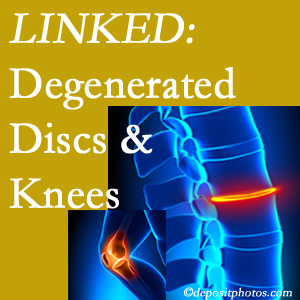Degenerated discs and degenerated knees are not such strange bedfellows. They are seen to be related. Groton patients with a loss of disc height due to disc degeneration often also have knee pain related to degeneration.